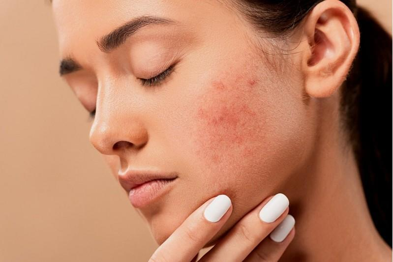 Best Beauty Tips: Home Remedies to Make Skin Shiny | ArticleIFY