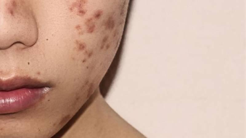 Bahaya Pakai Skin Care Abal-abal, Bisa Bikin Kulit Rusak Hingga Kanker!