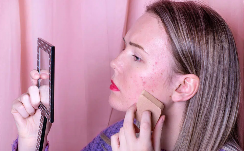 5 beauty tips to help get rid of pitted acne scars